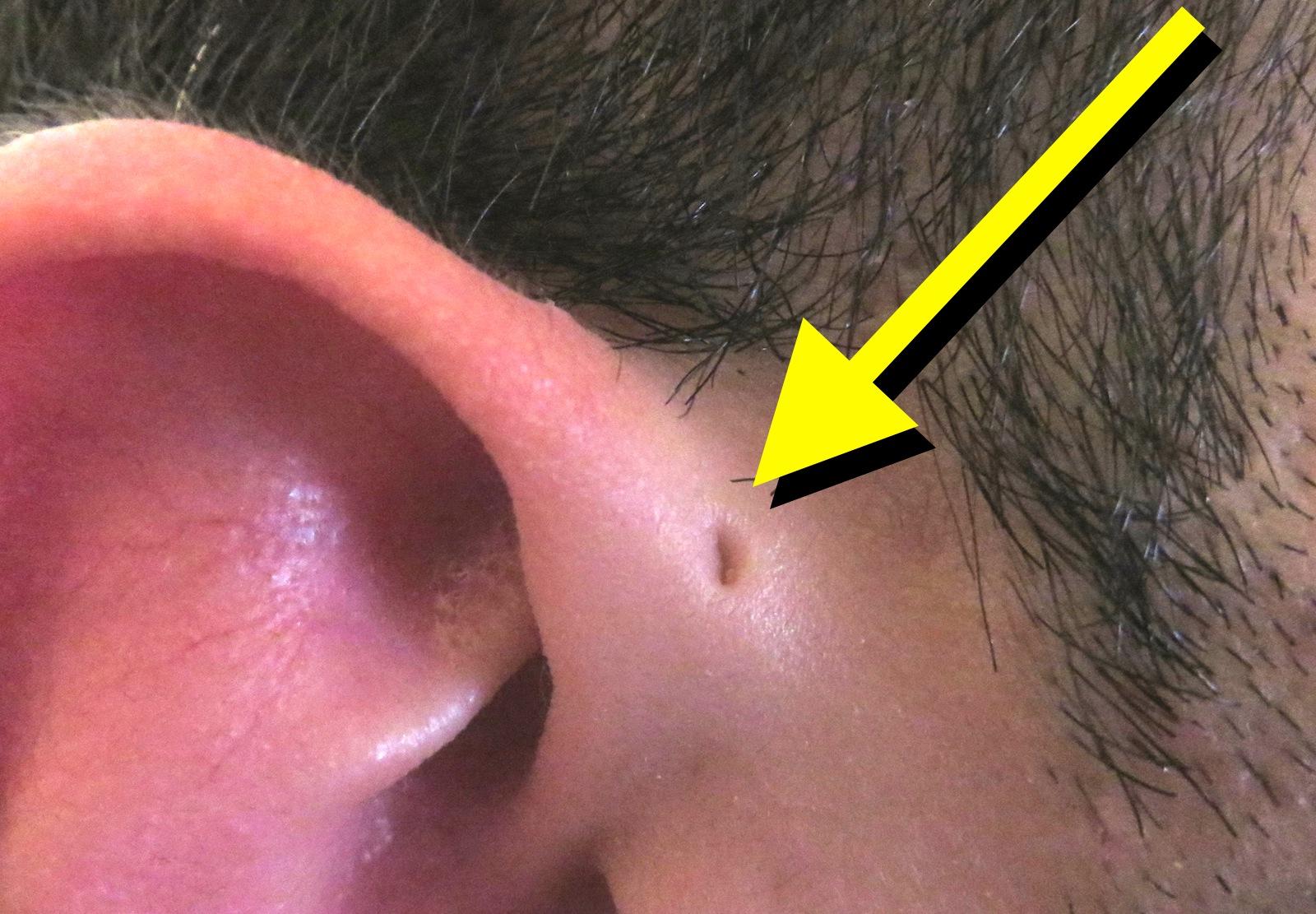 hull i øre